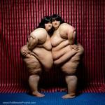 Toplumun Estetik Yargılarına Kafa Tutan 19 Kilolu Kadın Fotoğrafı