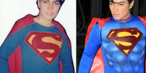 Boy Turns Into Real Life Superman After 23 Painful Surgeries