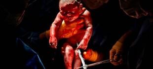 İlk Büyük Savaşı Kazanmalarından Saniyeler Sonra Fotoğraflanan Yeni Doğmuş Bebekler